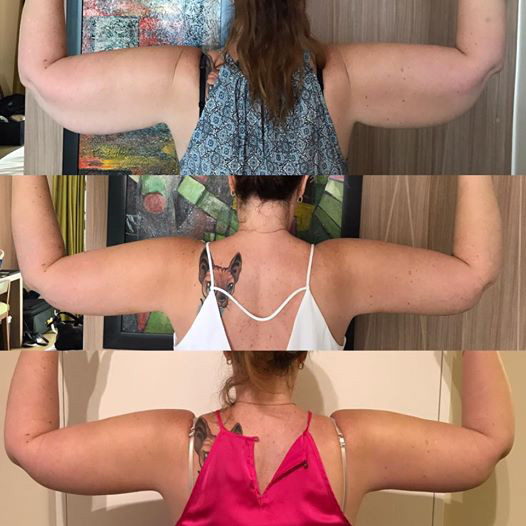 arm-lift-before-and-after